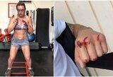 Šiurpią traumą patyrusi kovotoja nepasirodys UFC narve, krauju pasruvęs M.Perry žaidžia taktinius žaidimus