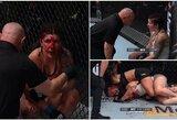 """Varžovės veidą prieš vestuves sumaitojusi UFC kovotoja: """"Nenorėjau, kad ji dar labiau kentėtų"""""""