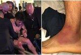 Pavydėtinas užsispyrimas: H.Cejudo traumuotas žengė į narvą, po kovos jam prireikė vežimėlio