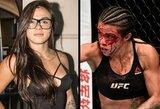 """Apsinuoginusi UFC kovotoja apie kelio operaciją: """"Tai ne pasiteisinimas sėdėti namie"""""""