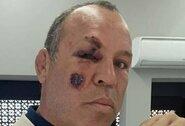 """Dviračiu važiavusį legendinį kovotoją W.Silvą partrenkė automobilis: """"Galėjau net mirti"""""""