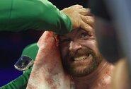 """T.Fury trenerio atsakas į jo tėvo kritiką: """"Jeigu jis būtų silpnas kaip kačiukas, jis nebūtų atlaikęs dvylikos raundų"""""""