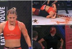 Brutalu: dukart olimpinė čempionė MMA narve sumaitojo varžovės veidą