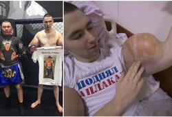 """Po pralaimėjimo MMA narve prieš O.Mongolą """"Ruki Bazuki"""" ryžosi operacijai, paaiškėjo, ko jis buvo prisileidęs į rankas"""