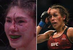 Praėjus savaitei: kaip atrodo praėjusį savaitgalį po MMA kovų šiurpiai sužeistos J.Jedrzejczyk ir J.Stoliarenko įveikta L.Verzosa?